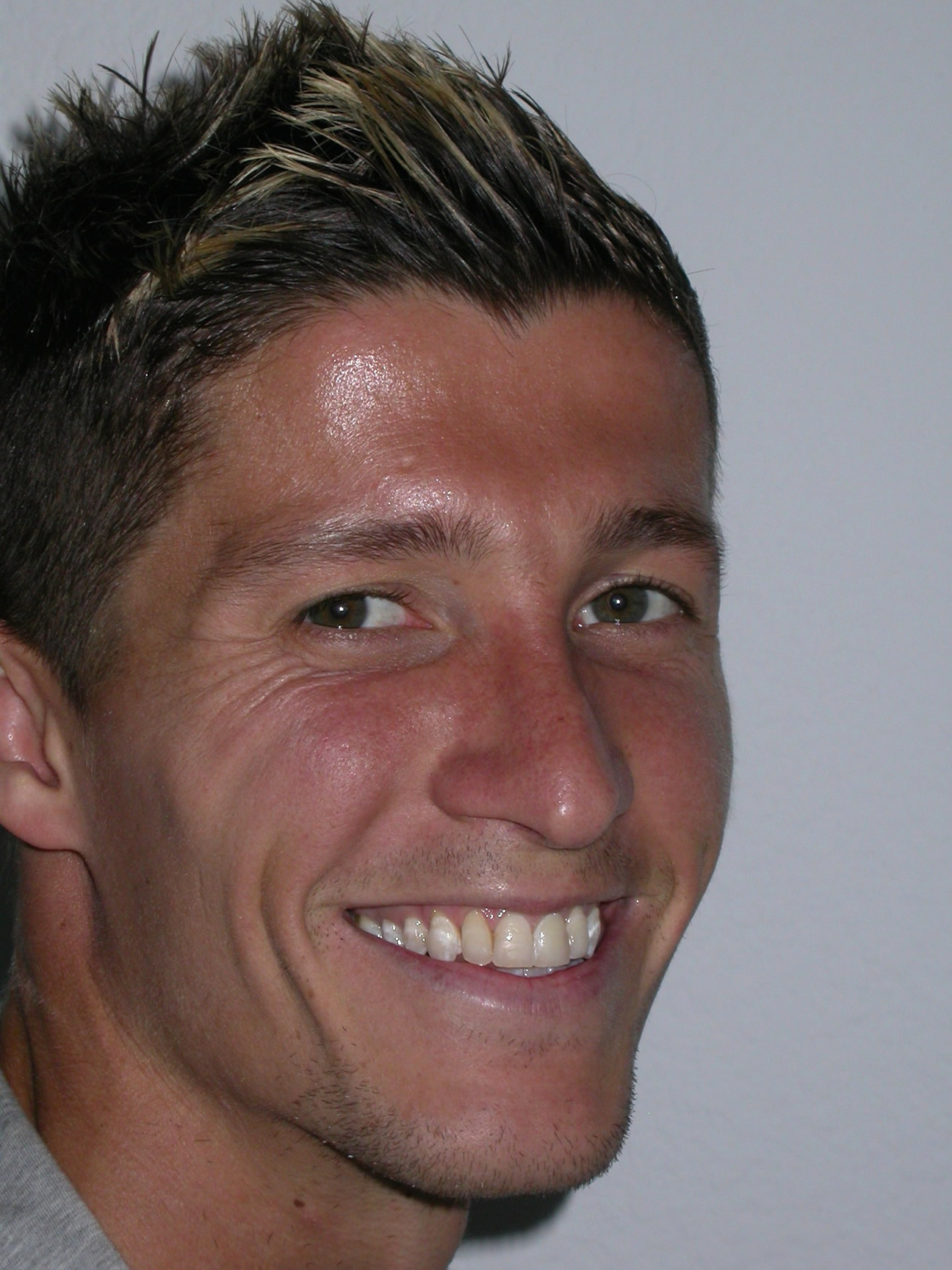 Ruyman Hernández (futbolista), tras ortodoncia realizada en Clínica Dental Henríquez, con estabilidad de resultados en el tiempo.