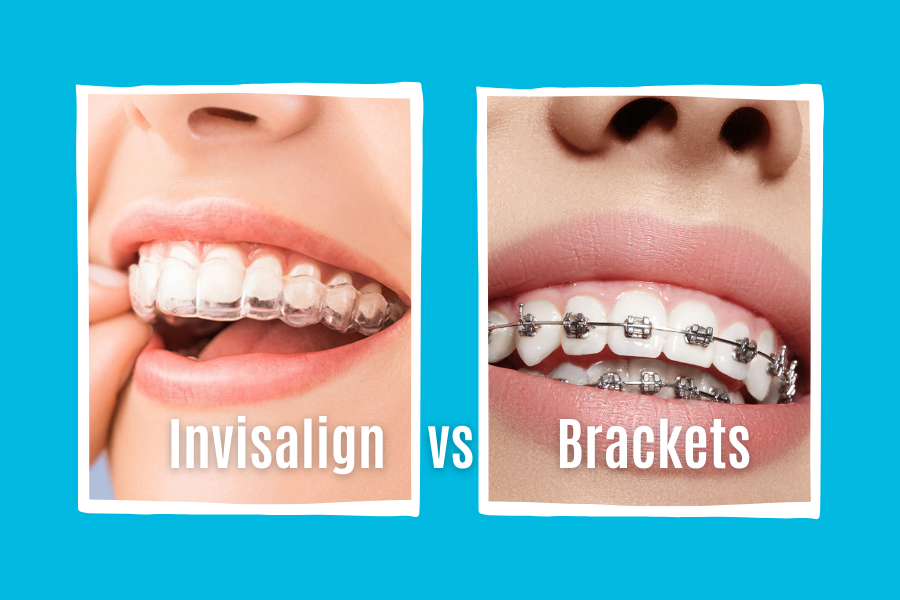 invisalingn-vs-brackets